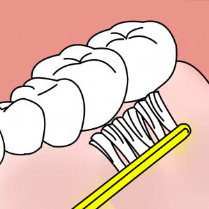 ⑤歯肉マッサージ