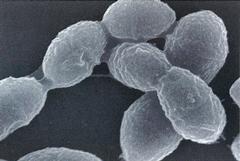 ストレプトコッカス・ミュータンスの電子顕微鏡写真像