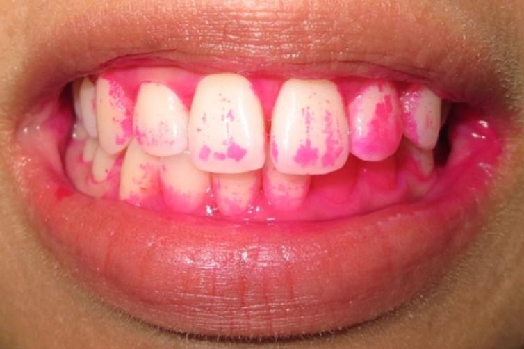市販の歯ブラシ
